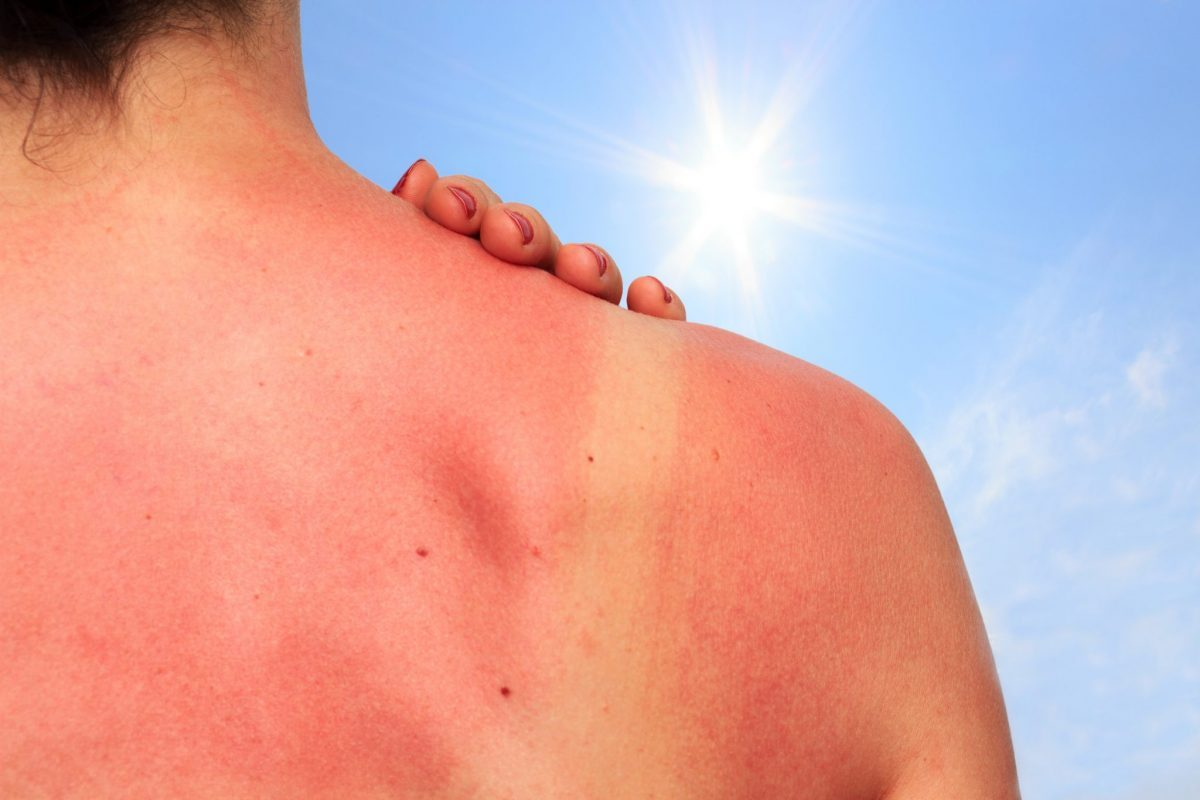 Treating a Sunburn | Physicians Premier Health Tips | Texas ER
